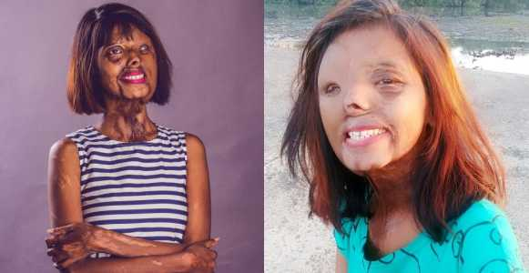 Lady doused in acid by her dad because he wanted a son shares inspiring new year message