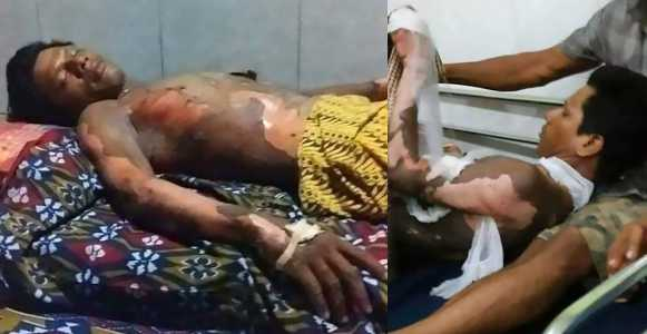 Wife burns her husband alive because he refused to give her his phone's password (photos)