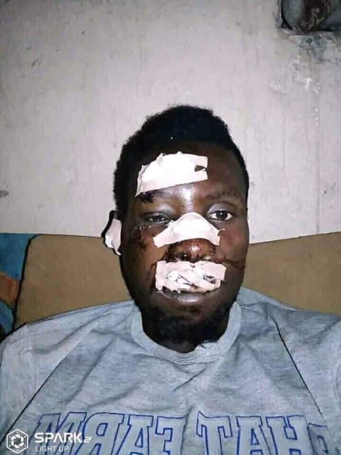 Man hospitalised after breaking his nose while celebrating Buhari's re-election