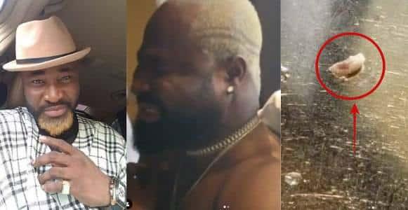 Live maggot retrieved inside the body of singer Harrysong (Video)a