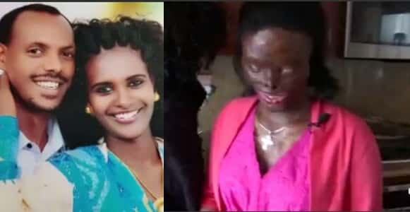 Woman disfigured, blinded by acid attack by her abusive husband (Photos)