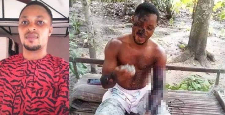 Jealous lady scalds her boyfriend with hot water In Rivers State