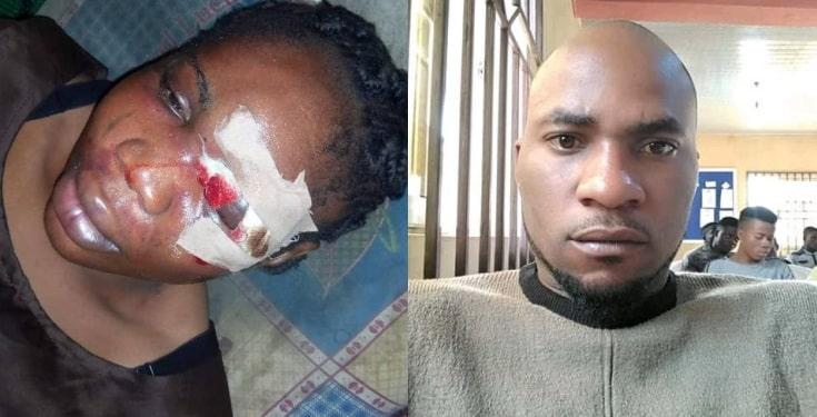 Nigerian man beats his fiancée 3 months to their wedding (Photos)