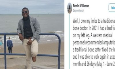 Man reveals how traditional bone setters saved him from amputation