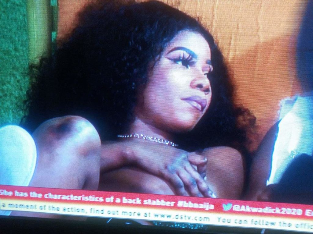 Bbnaija: Tacha's burnt knuckles and knees sets internet on fire (photo)
