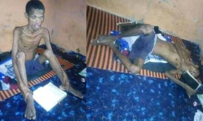 Man hospitalised after 41-days fasting and prayer in Ebonyi State (photos)