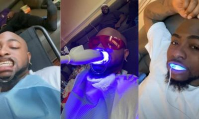 Davido shares photos from his visit to the dentist for teeth whitening (video)