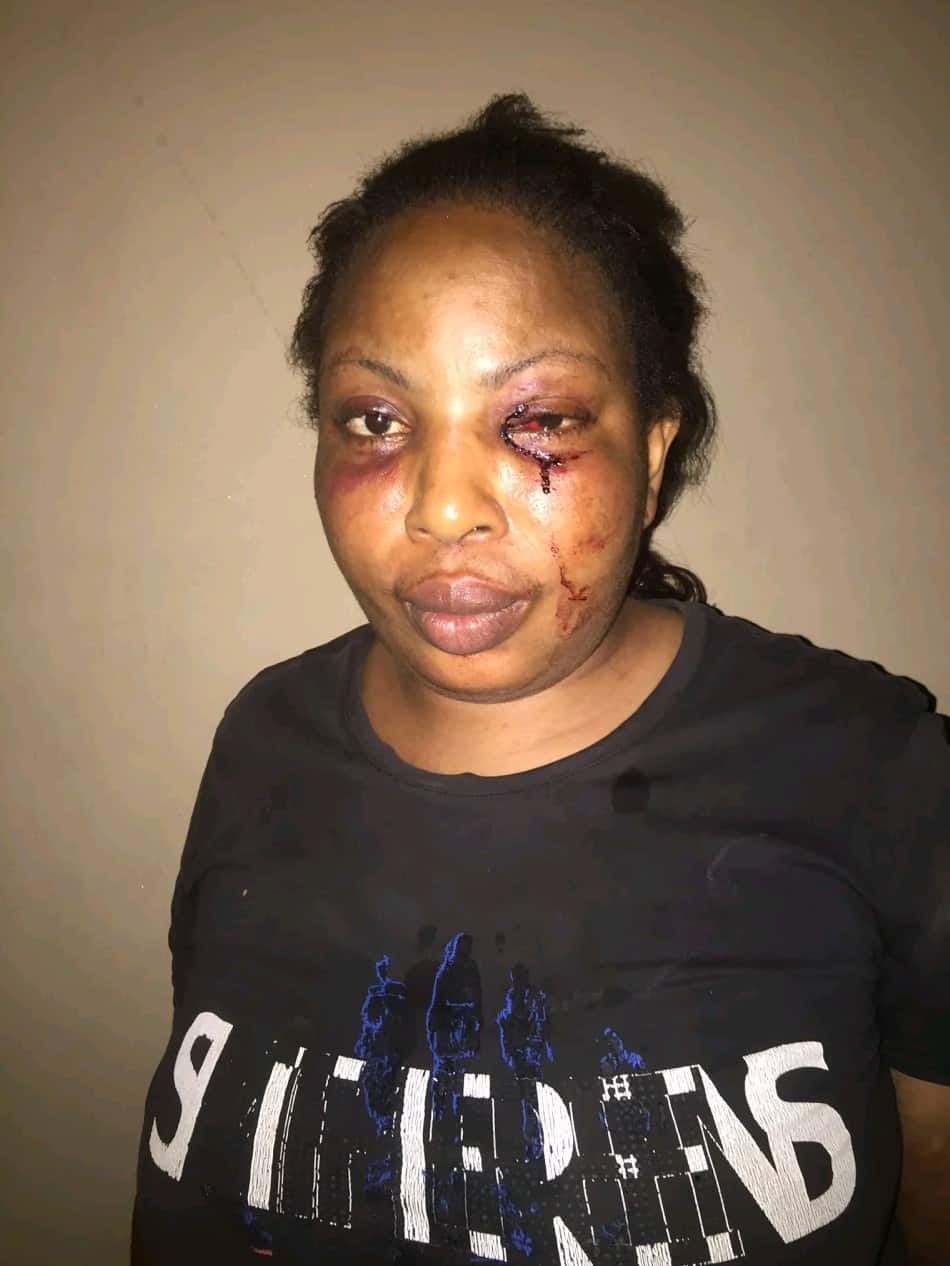 Lady shares photos of injuries she sustained after being assaulted by drunk 'baby daddy'