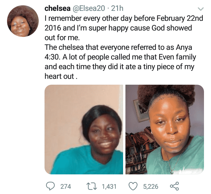 Bullied 4:30 eyed lady shares transformation photos after undergoing surgery