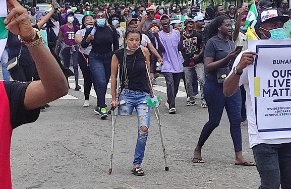 jane endsars protester with one leg
