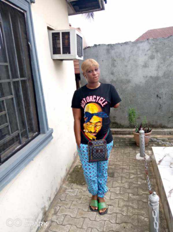 Woman narrates how her husband chopped off her hand over suspicion of infidelity