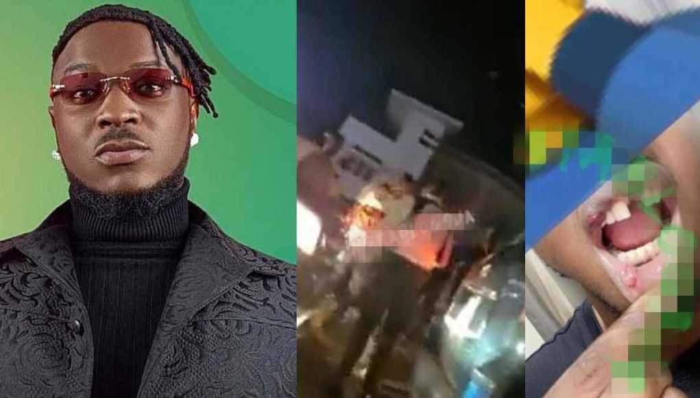 Peruzzi called out after knocking out man's tooth for recording him during a car accident (Video)